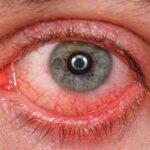سوختگی چشمها در جوشکاری