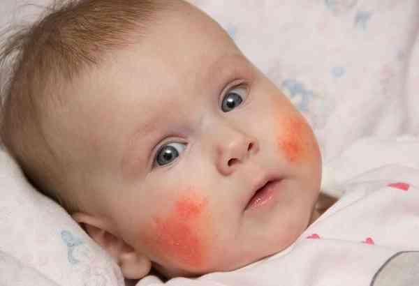 کنترل اگزمای نوزادان