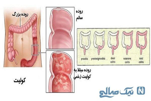پیشگیری از بیماری های روده ای