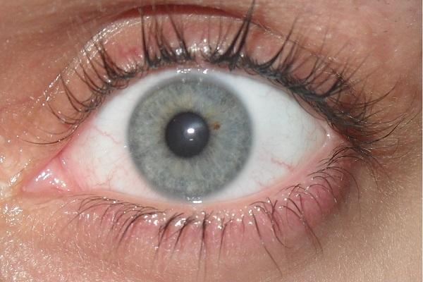 گلوکوم : وقتی فشار چشم بالا می رود