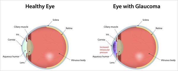 گلوکوم چشم