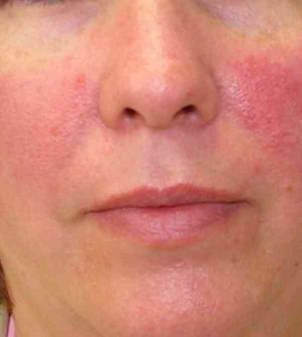 درمان قرمزی پوست صورت
