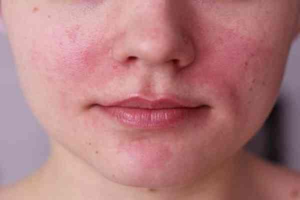 علل و درمان قرمزی پوست