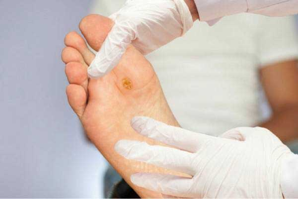 علل ابتلا به قارچ پوستی چیست؟