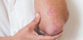 قارچهای پوستی؛ علل، علائم و درمان آن