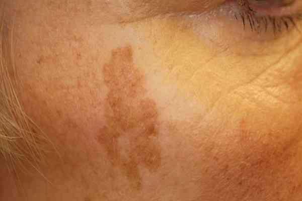 ۸ نوع لکه ماه گرفتگی پوست