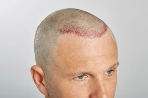 ارتباط مو و مغز در مرد