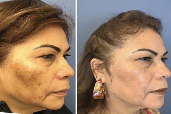 چگونه تیرگی پوست را درمان کنیم؟