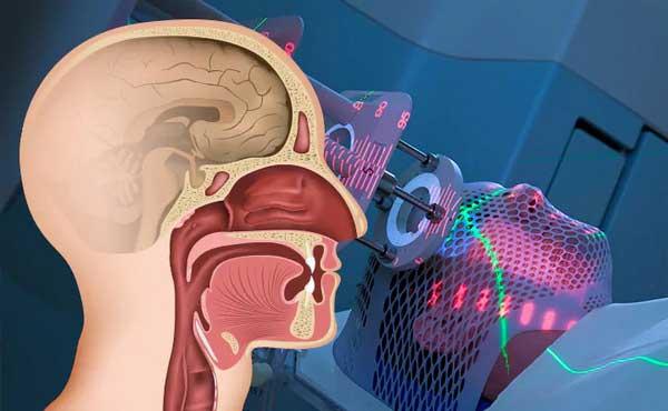 علائم و درمان سرطان سر و گردن چیست