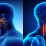 سرطان سر و گردن چه علائمی دارد