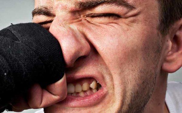 شکستگی بینی در اثر ضربه