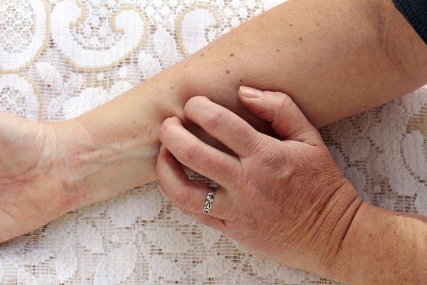 علایم پوستی هپاتیت