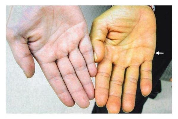 علائم پوستی بیماریهای کبدی