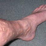 واریس پا را حتما درمان کنید