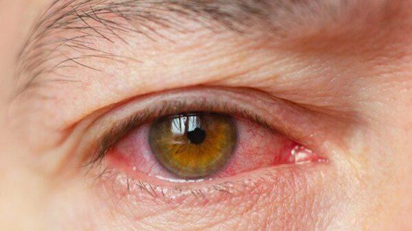 علت چشم درد