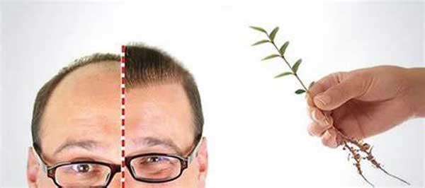 چیزهایی که قبل از کاشت مو باید بدانید