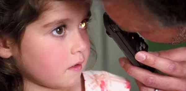 معاینه چشم کودک