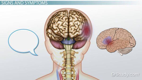 درمان لخته خون در مغز