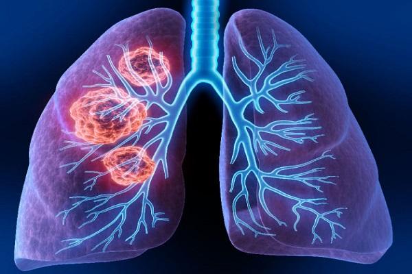 ایمونوتراپی روشی مکمل برای درمان سرطان