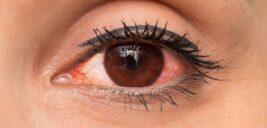 علل و علائم عفونت چشم چیست