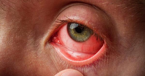 علل و علائم عفونت چشم