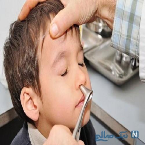 خودداری از خارج کردن جسم خارجی از بینی کودکان