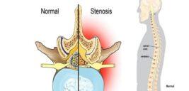 تنگی کانال نخاع موجب فلج میشود