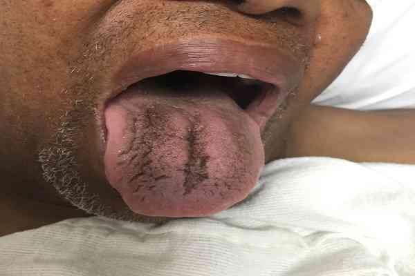 بیماری زبان سیاه مودار