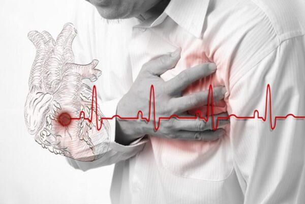 علل ضربان قلب نامنظم