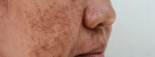 لکه های قهوه ای روی پوست