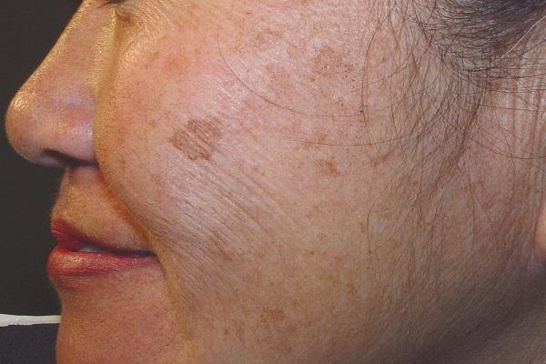 لکههای قهوهای پوست که به تدریج ظاهر میشوند