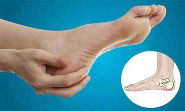 خار پاشنه پا را چگونه درمان کنیم؟