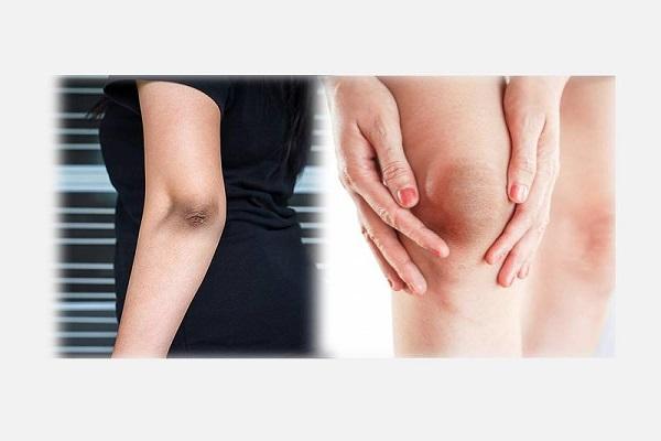 درمان آرنج و زانوهای سیاه