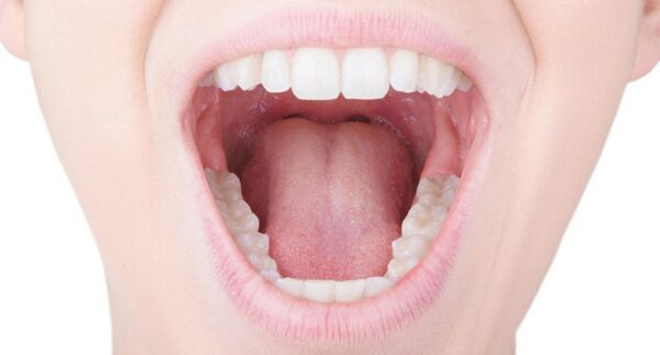 علت خشکی دهان