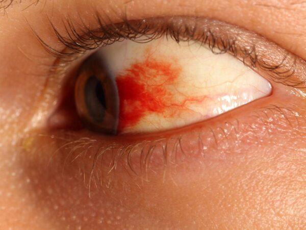 لکه خونی در چشم