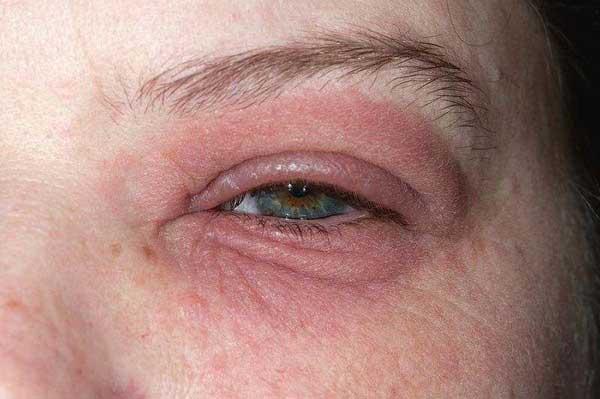 درمان قرمزی چشم ها
