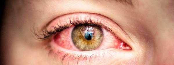 چرا چشم ها ناخودآگاه قرمز می شود؟