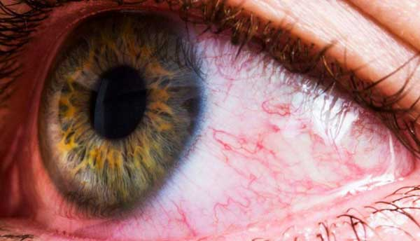 قرمزی ناخودآگاه چشم