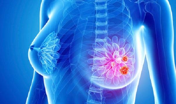 کدام کیست پستان باید جراحی شود؟