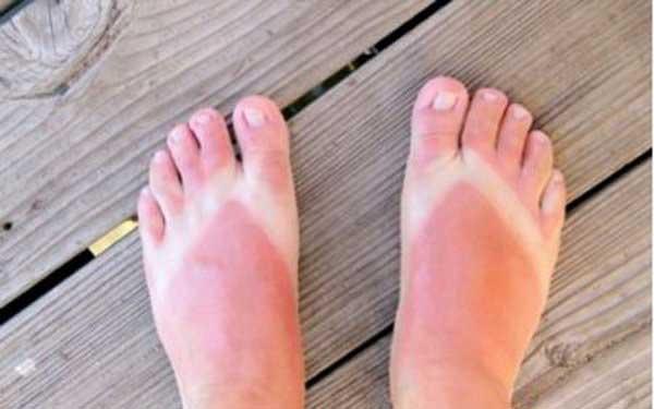 اصلی ترین درمان آفتاب سوختگی!