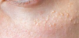 دانههای سفید پوست زیر چشم