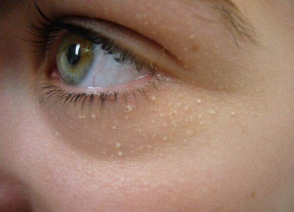 دانه های سفید زیر چشم
