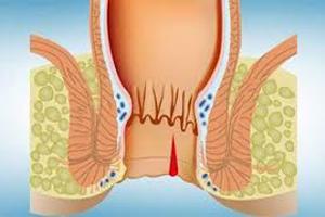 درمان بواسیر با داروهای گیاهی