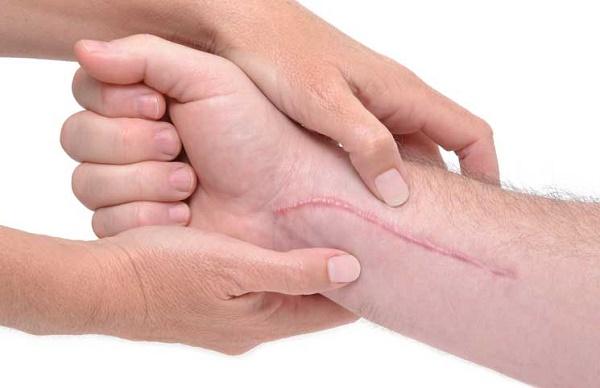 با این روش خارش پوست را درمان کنید