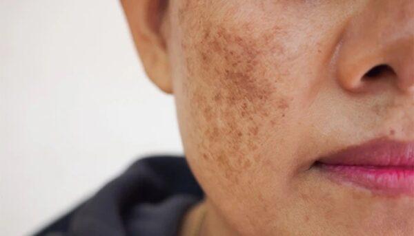 رفع لک پوست در طب سنتی