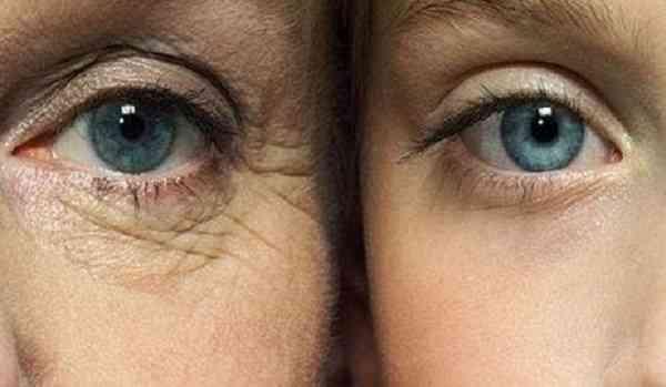 ویتامین برای چروک دور چشم