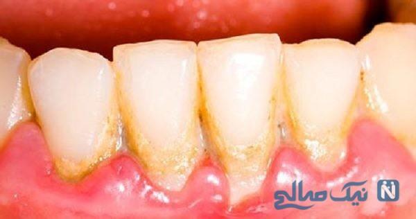 از بین بردن جرم دندان