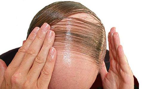 نکاتی درباره درمان ریزش موی مردان