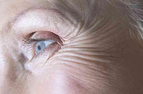 رسوب کلسیم در چشم