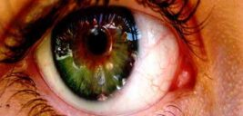رسوب کلسیم در چشم سبب نابینایی می شود
